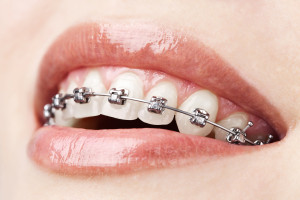 teeth-w-braces