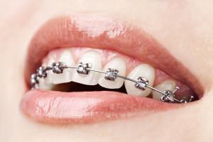 teeth-w-braces